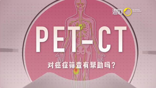 「健康科普」体检误区:PET-CT 是什么?对早期癌症筛查真的有帮助吗?