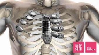 3D打印在骨科领域 实现了个性化医疗的首次突破